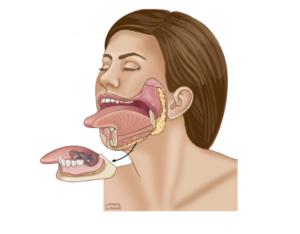 Mandibulectomy