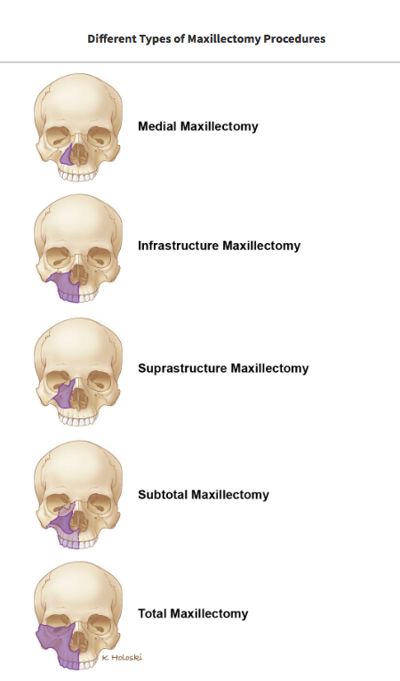 Maxillectomy