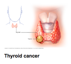 Thyroid cancer